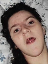 Photo of Marion Reynolds, a young woman with pale skin and dark brown curly hair. She is lying on a pillow, and her mouth is slightly open, showing crooked teeth.