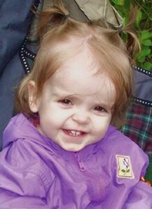 Photo of a toddler girl with strawberry-blonde hair and pale skin. She has a large forehead. Her wispy hair is pulled into two ponytails on top of her head. She is wearing a purple sweater. Her smile shows her two front baby teeth.